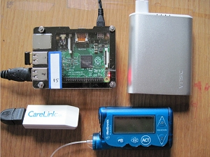 My artificial pancreas components: raspberry pi mini-computer, battery, insulin pump/cgm, and dongle.